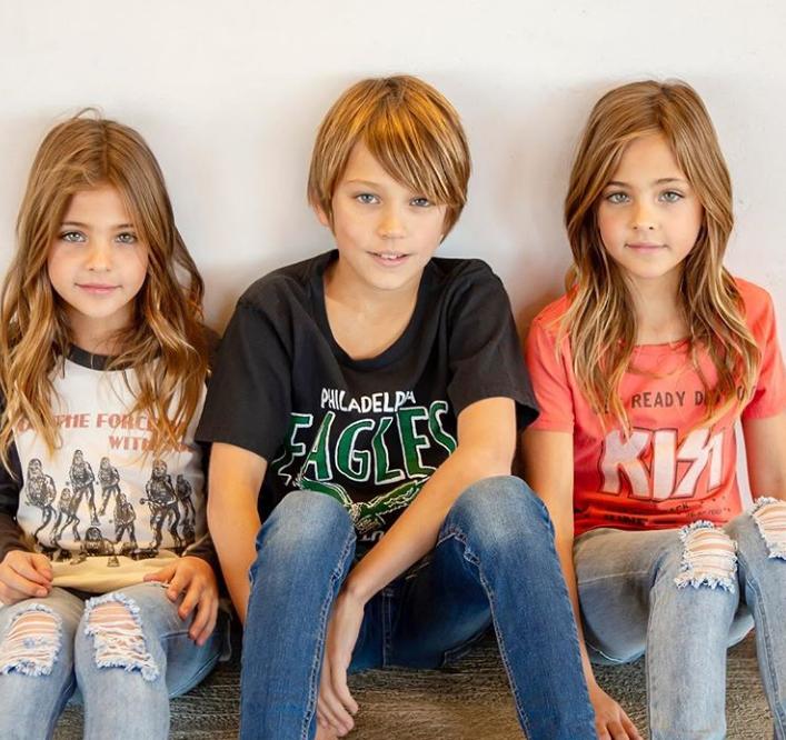 [Foto] Model Sejak Bayi, Umur 8 Tahun Jadi Kembar Tercantik Dunia. Ini Sebabnya