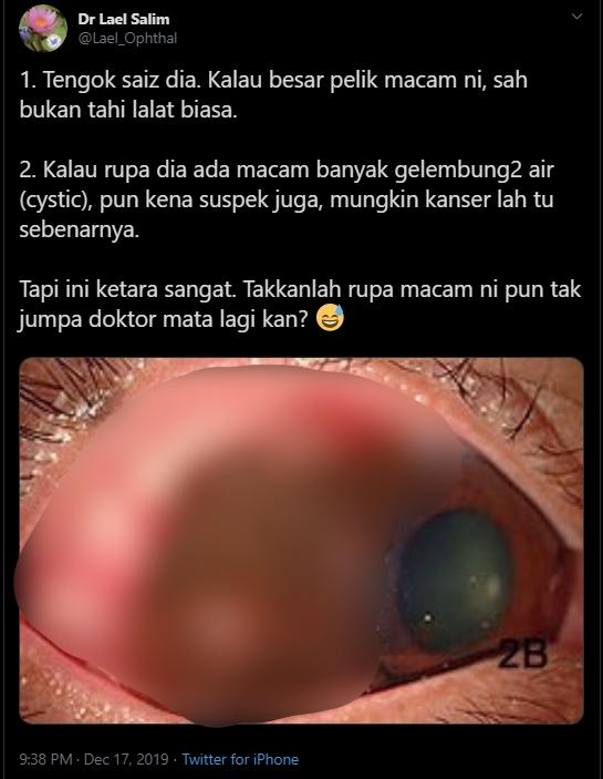 Ramai Anggap Tahi Lalat Mata Benda Normal, Doktor Dedah Rupanya Petanda Kanser