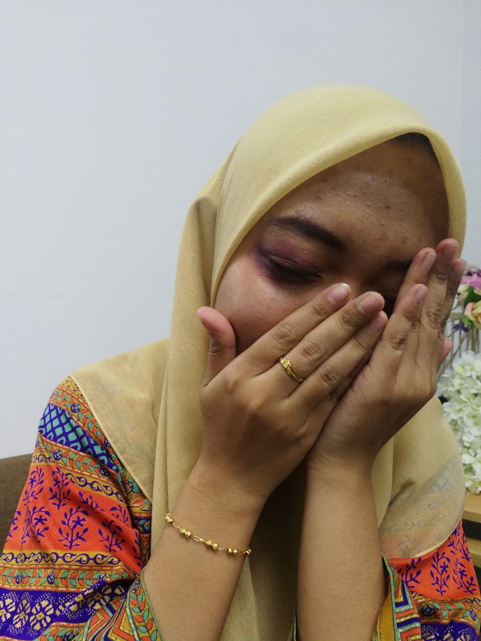 Terperangkap Dalam Hubungan Toxic, Gadis Dihentak Ex Boyfriend Kerana Cemburu