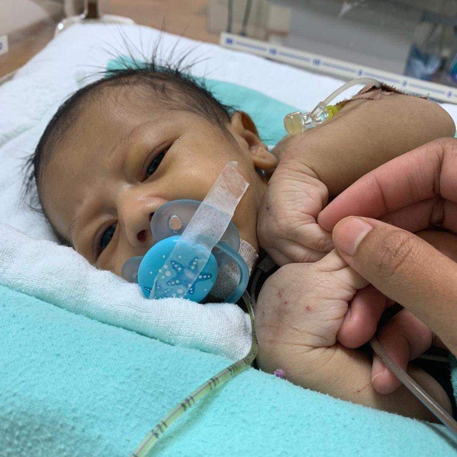 Baby Tanggung 'Rare Disease', Tak Dapat Minum Susu Hingga Badan Tinggal Tulang