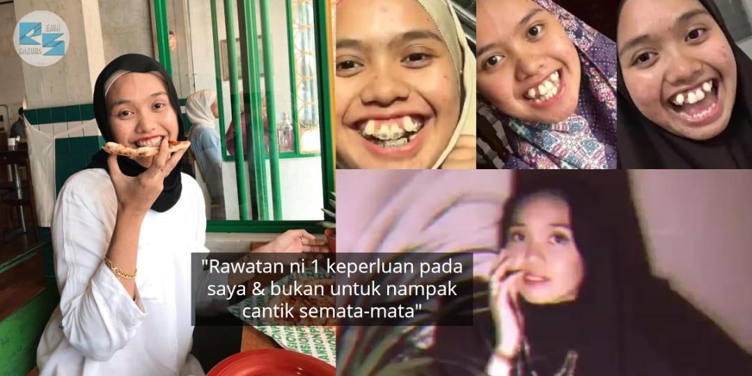 Pernah Diejek Gigi Salah 'Parking', Gadis Sanggup Berhabis RM6K Demi Penampilan