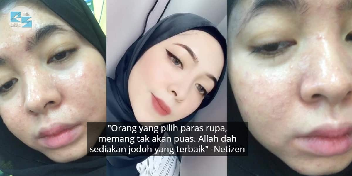 [VIDEO] Ditinggalkan Boyfriend Kerana Wajah, Gadis Bangkit Dengan Imej Flawless