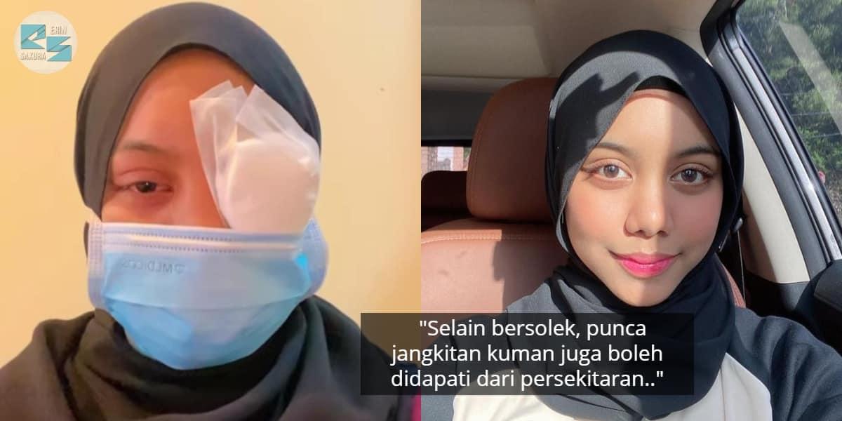 Serik Mata Dijangkiti Kuman, Sarah Suhairi Rayu Wanita Cuci Mekap Betul-Betul